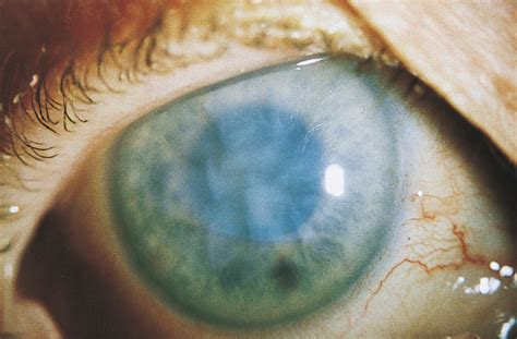 Bilateral Ocular Ischemic Syndrome Secondary to Giant Cell