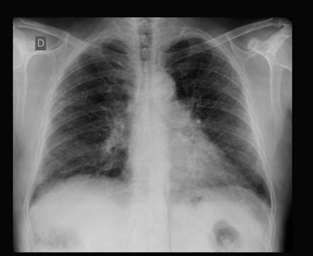 Combined pulmonary fibrosis and emphysema - probable